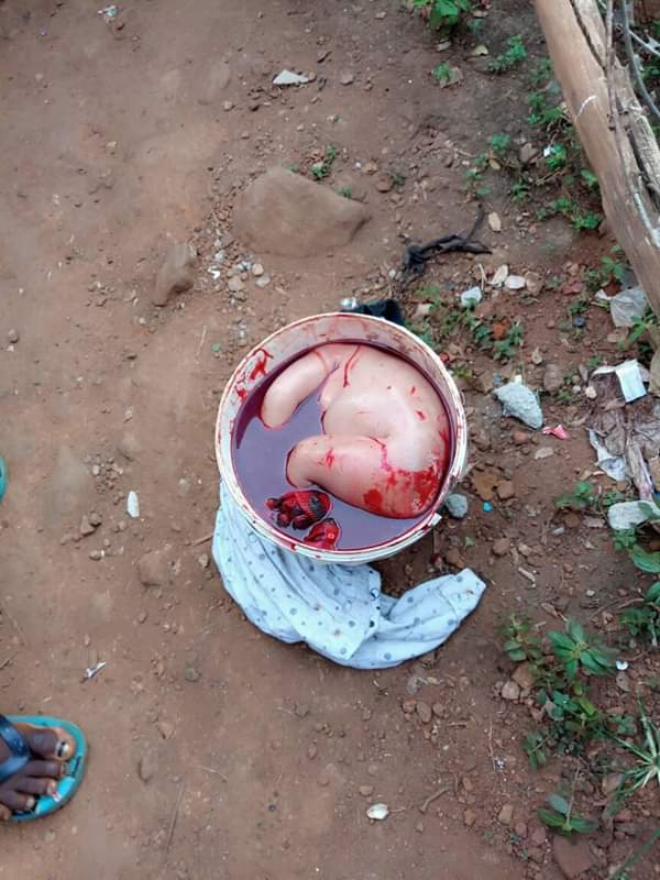 SIERRA LEONE: Lady Kills Her Baby After Birth [GRAPHIC PHOTOS]