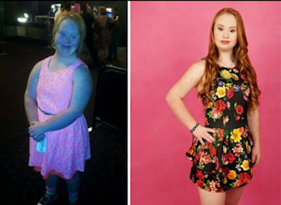An Australian with Down Syndrome lost weight and became a model