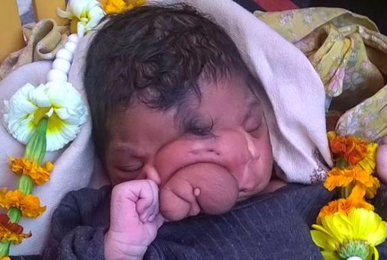 Indians worship girl born with a facial deformity like a god