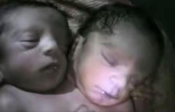 Co-joined twins born in India but dies after 30 hours