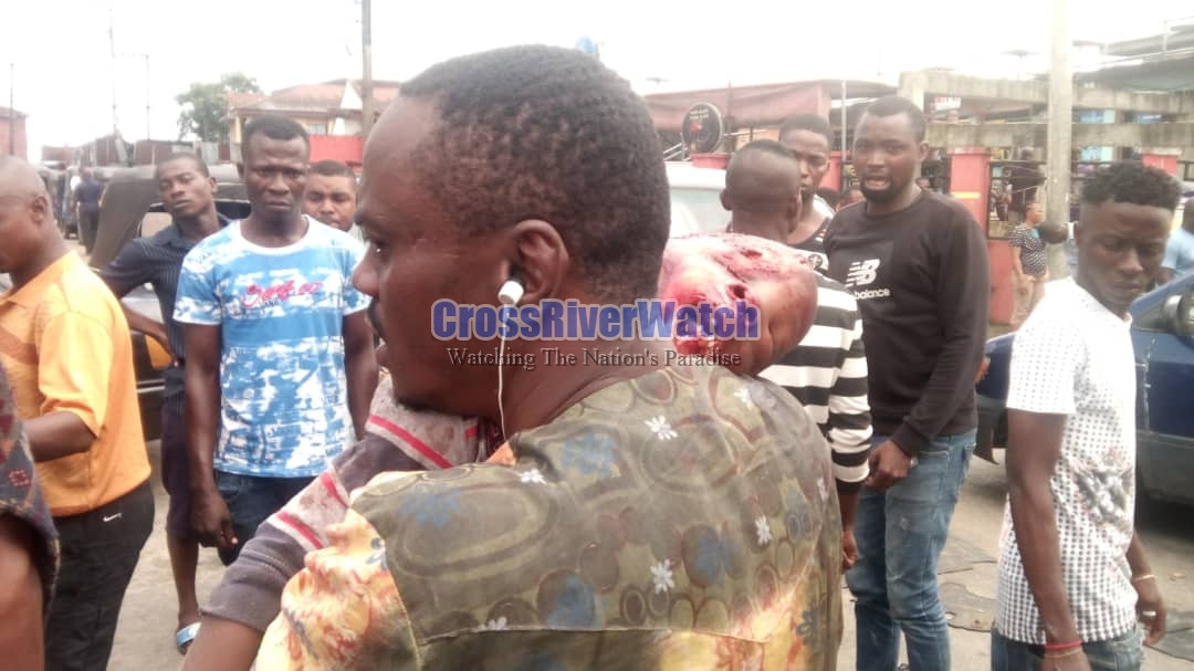 4-Year-Old Boy Crushed To Death By Dangote's Truck In Calabar
