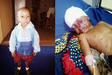 7yr old narrates how 2 dogs attacked his 4yr old brother for over an hour